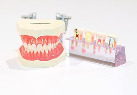 痛い 歯 固い を 噛む が と もの